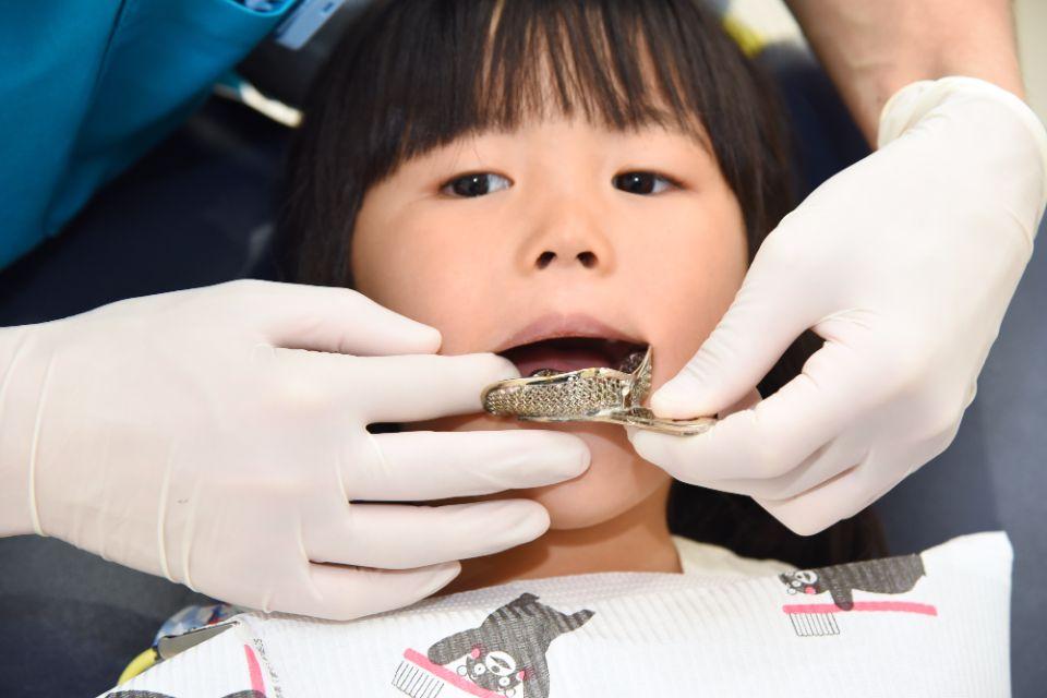 顎顔面矯正を始める年齢について
