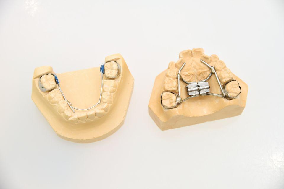 顎顔面矯正の方法